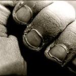 Téli bőrproblémák és bőrbetegségek természetes kezelése